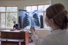 Nya sätt att bota tbc: Läkare Utan Gränser driver kliniska studier