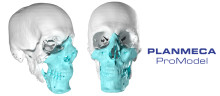 A face transplant operation is a demonstration of advanced surgery and high technology
