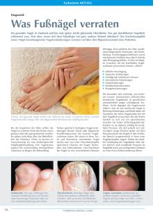 Diagnostik: Was Fußnägel verraten