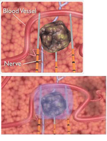 Akademiska utökar studie med strömbehandling vid bukspottkörtelcancer