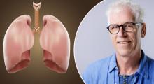 Ny fortbildning om immunterapi vid lungcancer