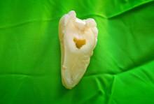 Färre trasiga tandfyllningar med nytt material