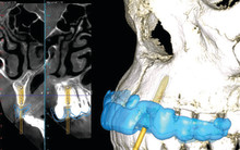Case report: The complete digital implant workflow