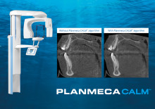 Planmeca CALM™ receives Innovation 2017 honorary mention