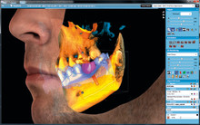 Planmeca Romexis® – CAD/CAM work and CBCT data in one software
