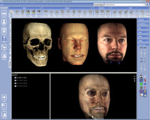 New Planmeca ProMax 3D ProFace system enables safer and faster facial surgeries