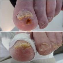 Lunula laser och ischemiska sår