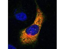 Prostatacancercell i mikroskop