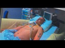 Asbjørn at Aberdeen hospital - in a coma - credits Judith Morell