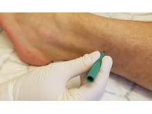 Biopsi på hudvävnad Parkinsonstudie Akademiska sjukhuset