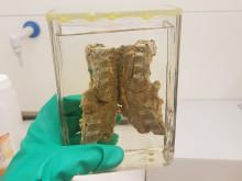 Våtpreparater konserveres. Her en ryggrad med tuberkulose.
