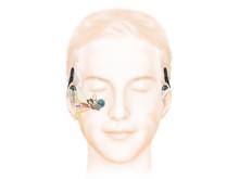 Wie das Hören mit einem Cochlea-Implantat mit Akustikkomponente funktioniert