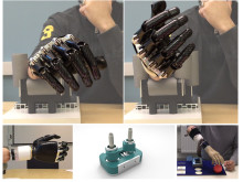 The new artificial wrist joint dramatically improves the range of movement for forearm amputees.