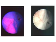 Fotodynamisk diagnostik vid urinblåscancer
