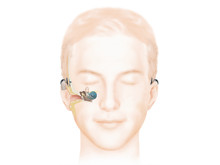 Wie das Hören mit einem Baha Knochenleitungsimplantat (Attract) funktioniert
