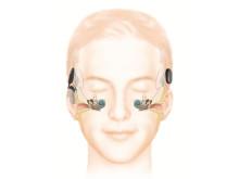 Wie das Hören mit einem Cochlea-Implantat funktioniert