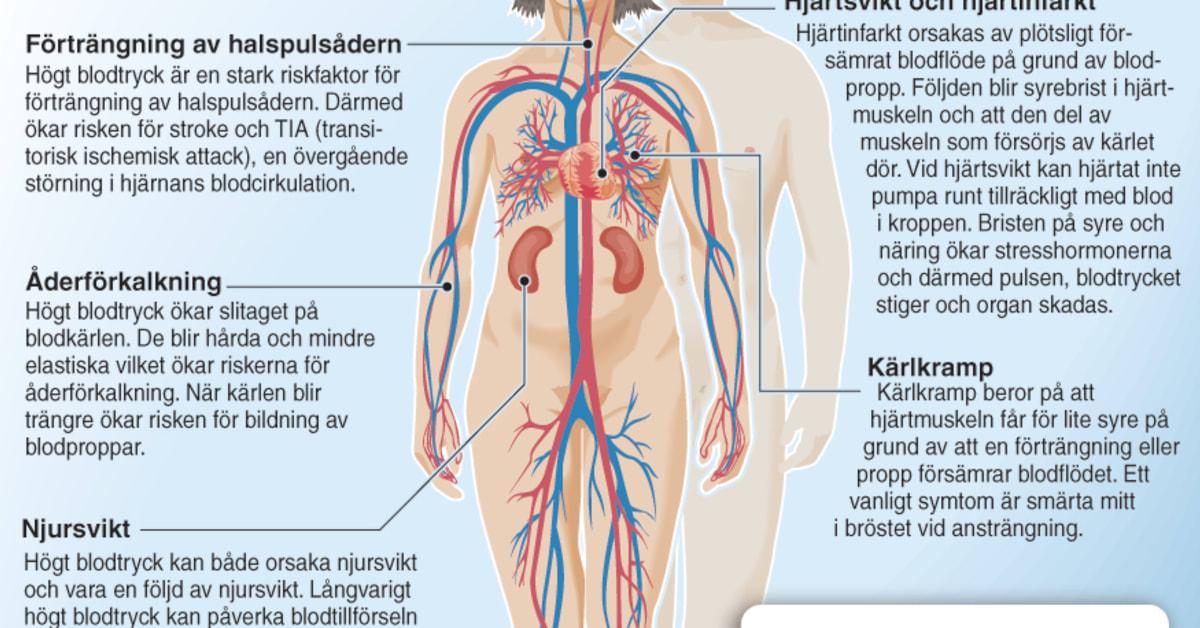 förträngning halspulsådern symtom