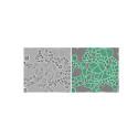 1,6 miljoner celler förbättrar AI-baserad tolkning av mikroskopibilder