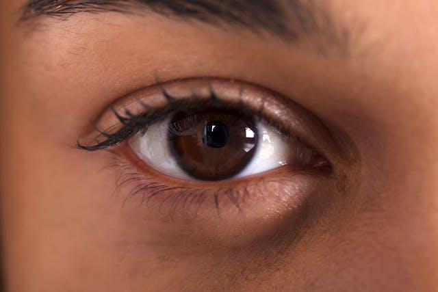 hur får man bort ringar under ögonen